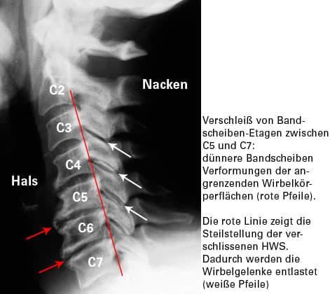 Spinewell für einen besseren Rücken