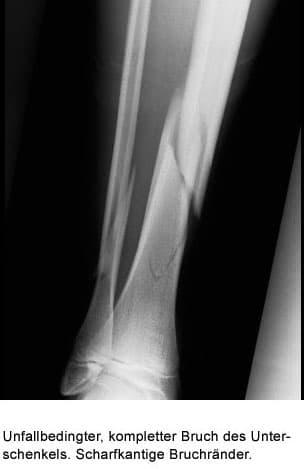 osteoporose definition spezifische therapie